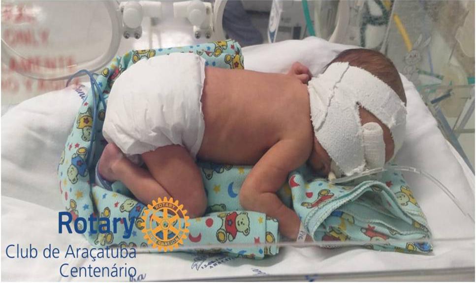 Doação de coeiros para a UTI neonatal da Santa Casa